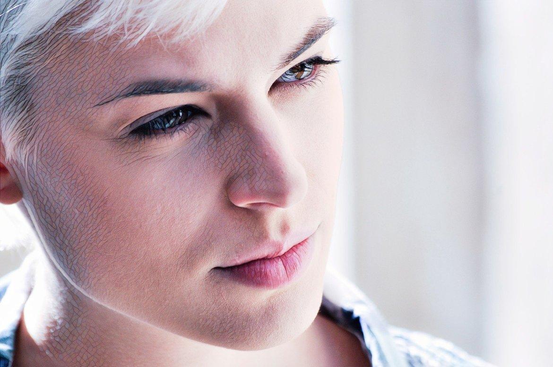 Девушка думает, делать ли мезотерапию против акне