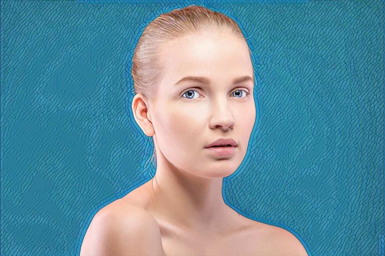фото девушки после лечения акне на носу