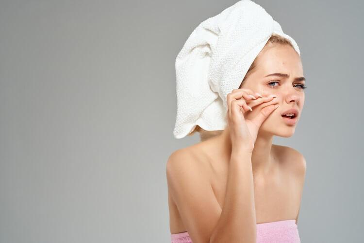 Девушка с полотенцем на голове давит прыщ на шеке